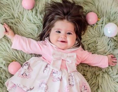 Dziewczynka urodziła się z bujnymi włosami. Tak wygląda teraz