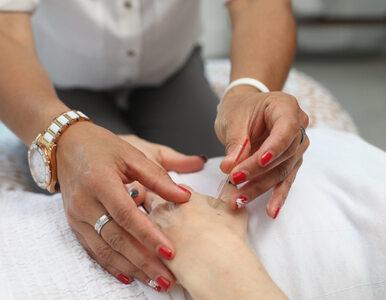 Akupunktura zmniejsza objawy niestrawności? Nowe badanie