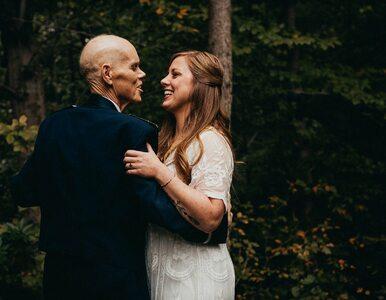 Becky i jej umierający ojciec - Tim Carey zrobili sobie sesję zdjęciową....