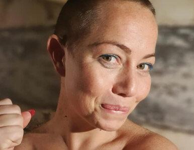 """Gwiazda """"Idola"""" chorowała na raka. Opublikowała przejmujące zdjęcia"""